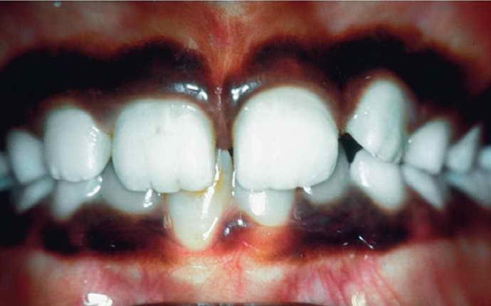 Травмы зубов или десен