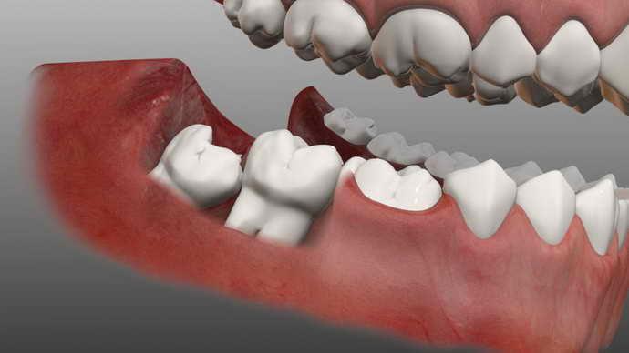 Неестественный рост зубов мудрости и радикулярная киста верхней челюсти