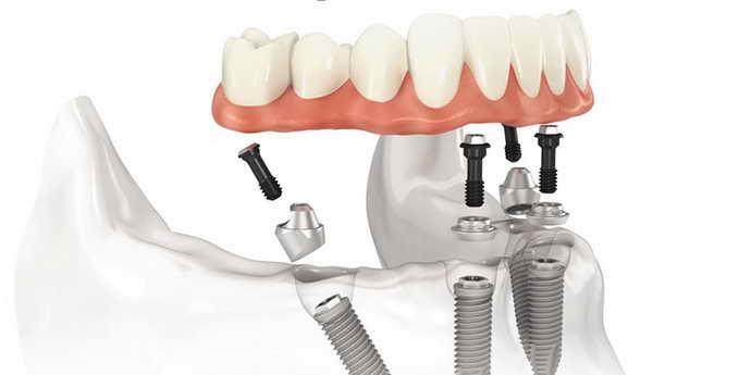ремонт зубных протезов