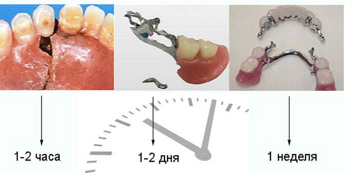 Неисправности креплений зубных протезов