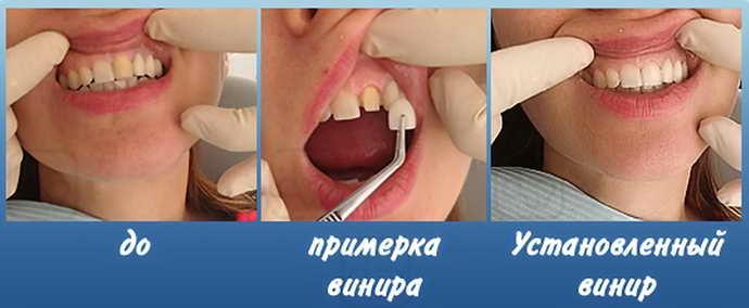 кому нужна реставрация зубов винирами