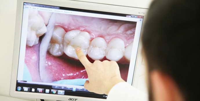 Исправление кривизны передних зубов винирами