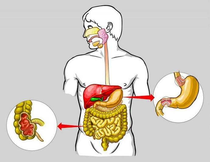 Рецидиву афтозного стоматита способствует множество причин