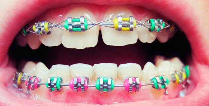 Резинки между зубов перед установкой брекетов