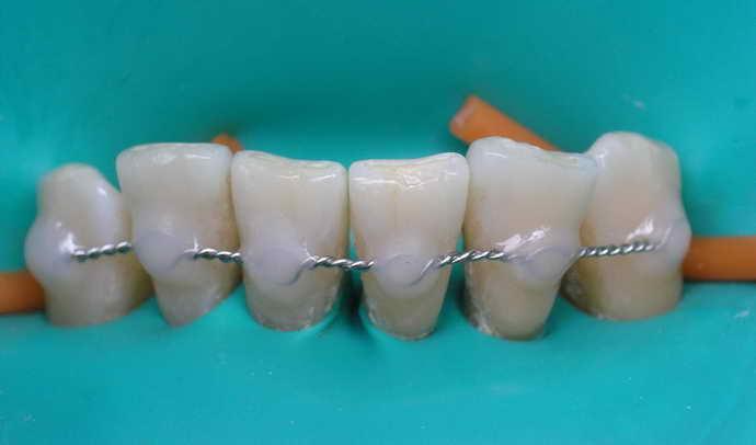 Шинирование как способ спасения зубов