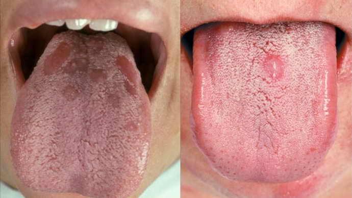 Шишки на языке могут иметь разную симптоматику