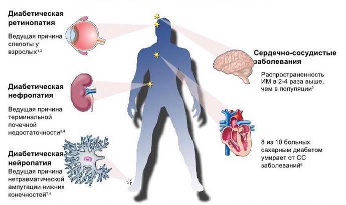 Сахарный диабет изза нарушений гипофиза
