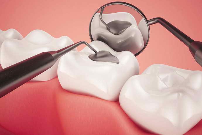 В процессе пломбирования зубов врач добивается легкого отвердения
