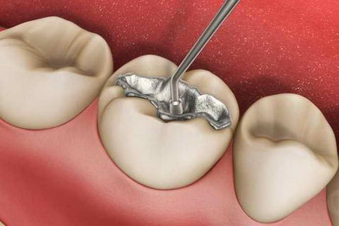 Когда можно есть после пломбирования зуба
