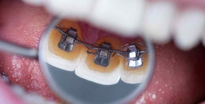 Сколько нужно носить брекеты, чтобы выровнять зубы взрослому человеку?