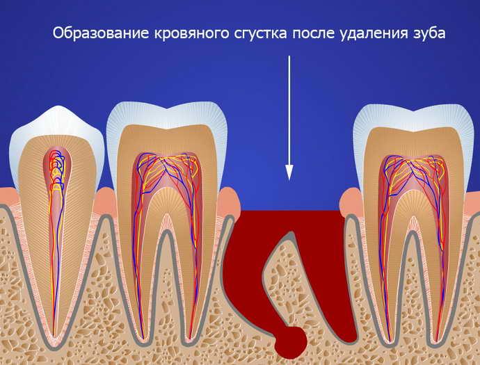 Способы удаления зубов мудрости