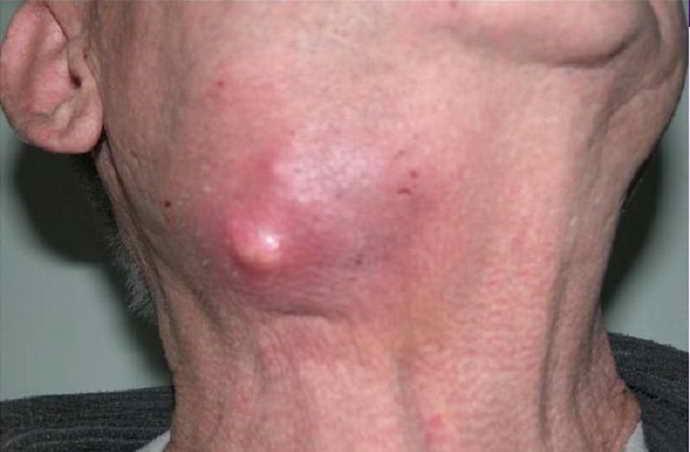 Стадия клинически выраженного воспаления как выглядит