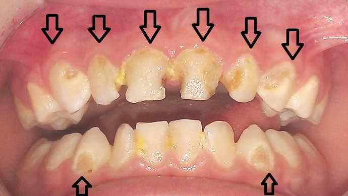 Виды стоматологического заболевания кариеса среднего