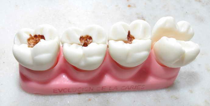 Средний кариес на этой стадии зуб еще можно спасти