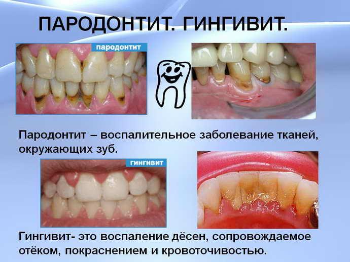 появление выраженных дырок между зубами при пародонтите