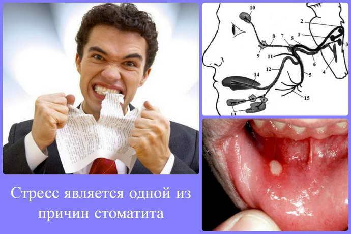 Причины развития стоматитов