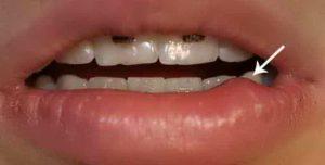 как обычно возникает стоматит на губе