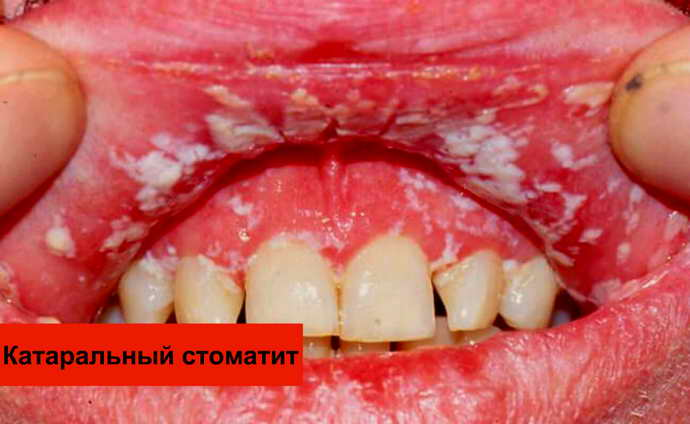 Катаральная форма стоматита