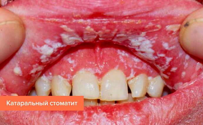Признаки стоматита у ребенка 3 года thumbnail