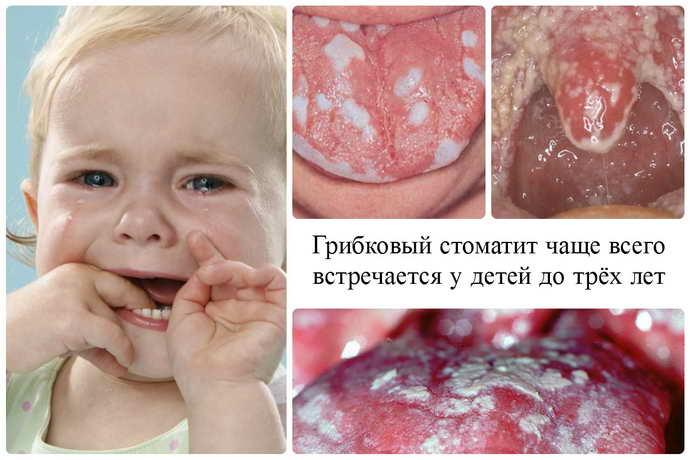 грибковый стоматит у детей 3 года
