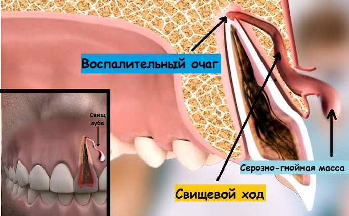 Постепенно прыщик преобразуется в отверстие, которое причиняет значительную боль