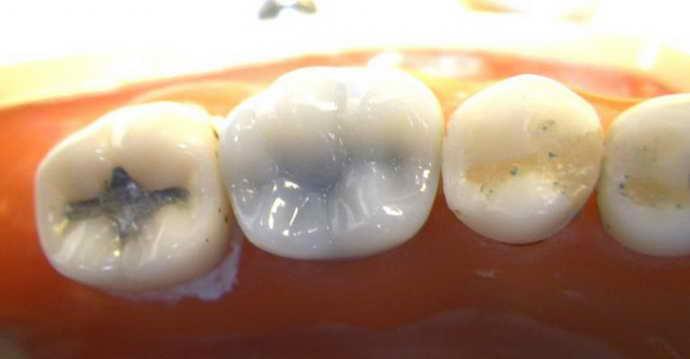 кариес близлежащих верхних и нижних зубов