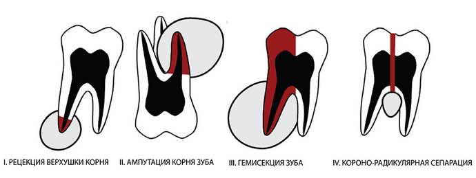 один из безопасных методов удаления инфекции на зубе