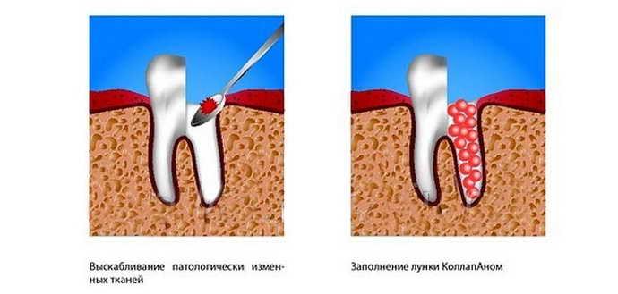Гемисекция кисты зуба
