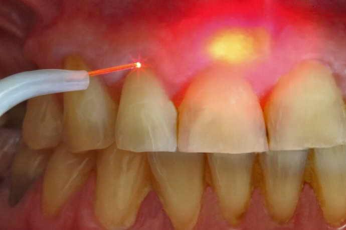 безопасный подход кудалению зуба с кистой