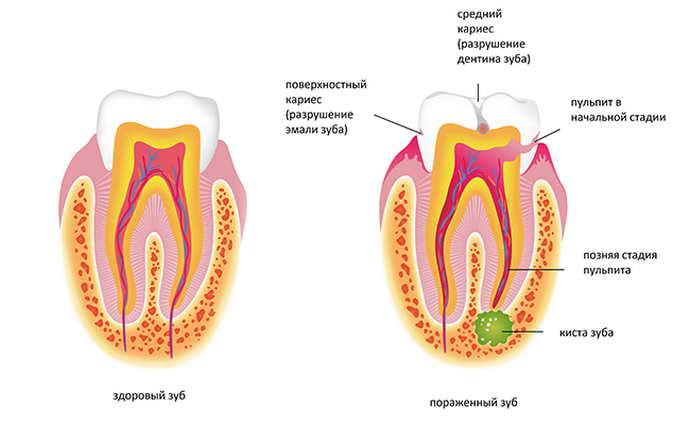 Кисту на корне зуба стоит отнести к сложным заболеваниям