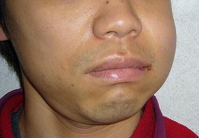 Показаниями к удалению зуба с кистой