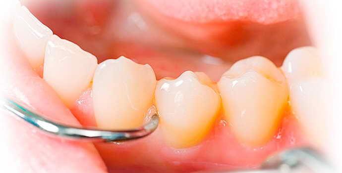 Операция по удалению кисты зуба