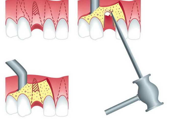 удаление корней зуба с последующей установкой импланта