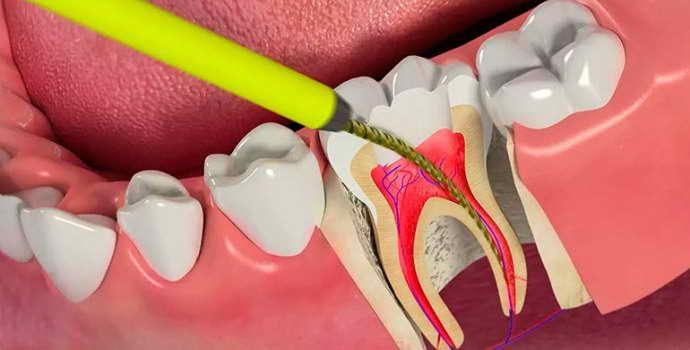 Методы удаления пульпы зуба