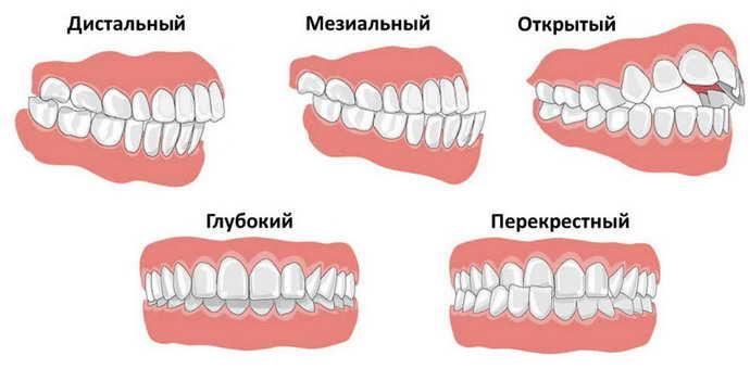 Возможные осложнения при росте зубов мудрости