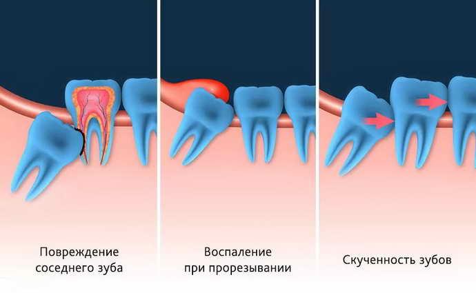 факторы, воздействующие на нормальный рост зубов
