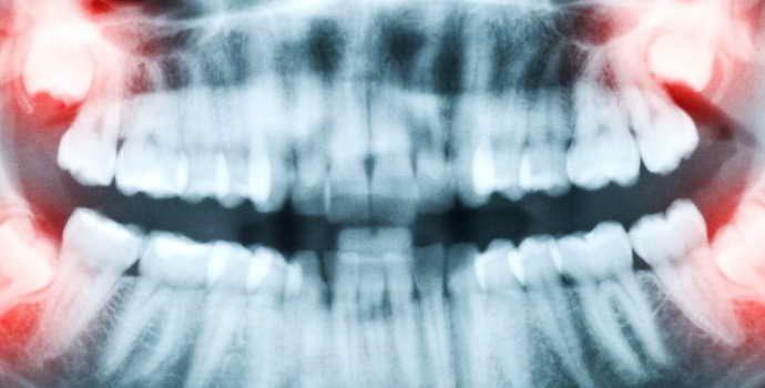 Удаление ретинированного зуба мудрости: подготовка, возможные осложнения