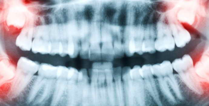Удаление дистопированного зуба мудрости на нижней челюсти
