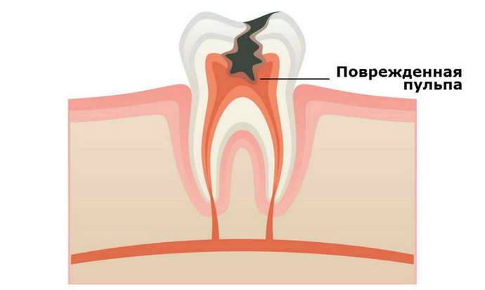 Проблемы с нервными тканями – главныепоследствия удаления зуба мудрости