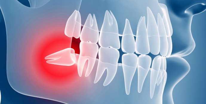 Удаление зуба мудрости и реабилитация после процедуры