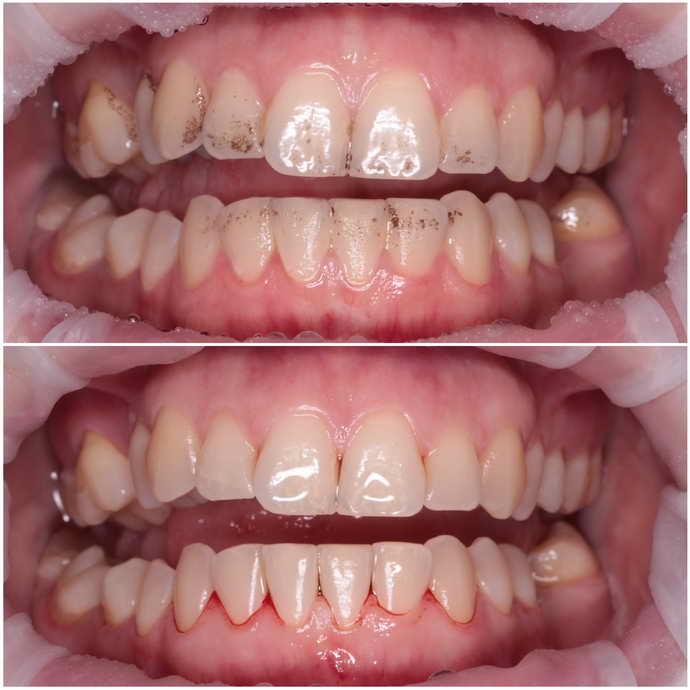 Суть удаление зубного камня ультразвуком