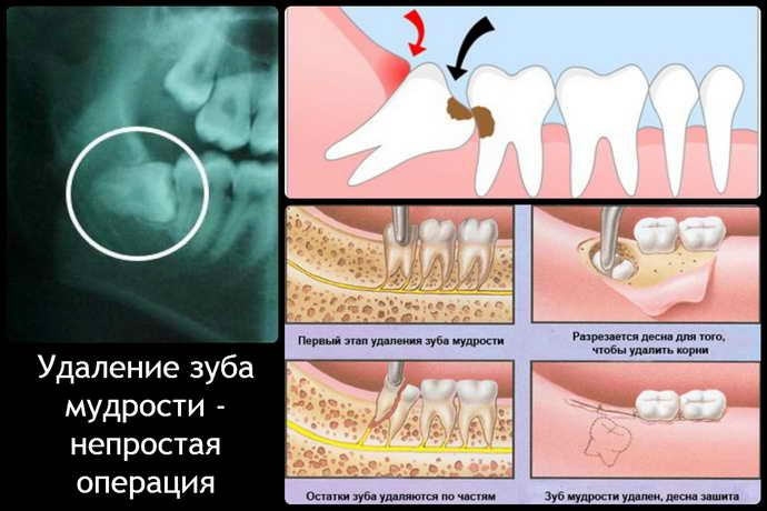 Может ли появиться боль во время операции по удалению зуба мудрости