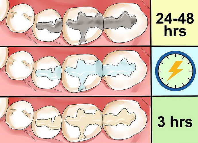 Как правильно ухаживать за пломбами на молочных зубах