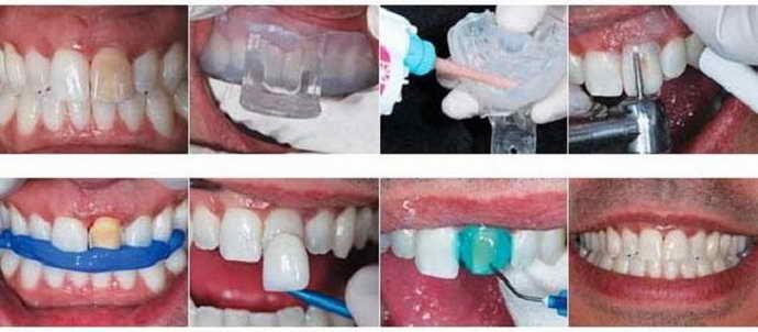 Принцип реставрации зубов виниров