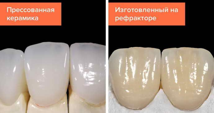 Керамические лучше напоминают натуральный вид зубов