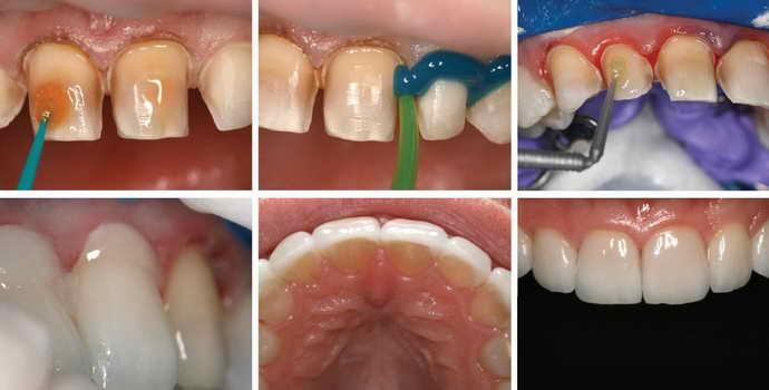 Правила установки и срок службы виниров на передние зубы