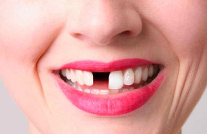 Отсутствие хотя бы одного переднего зуба