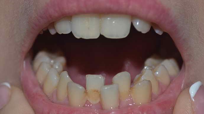 Значительная кривизна зубов и виниры