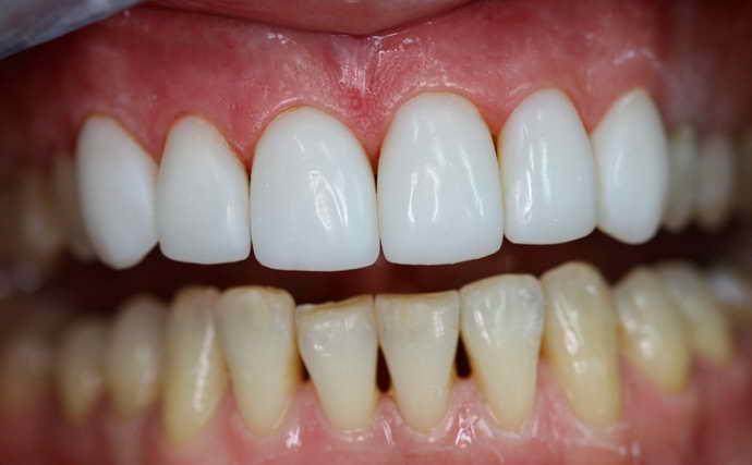 Композитные виниры на передние зубы