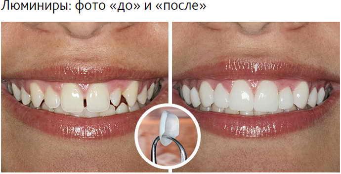 Люминиры на передние зубы